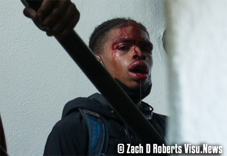 DeAndre Harris, semi-conscious and bleeding.